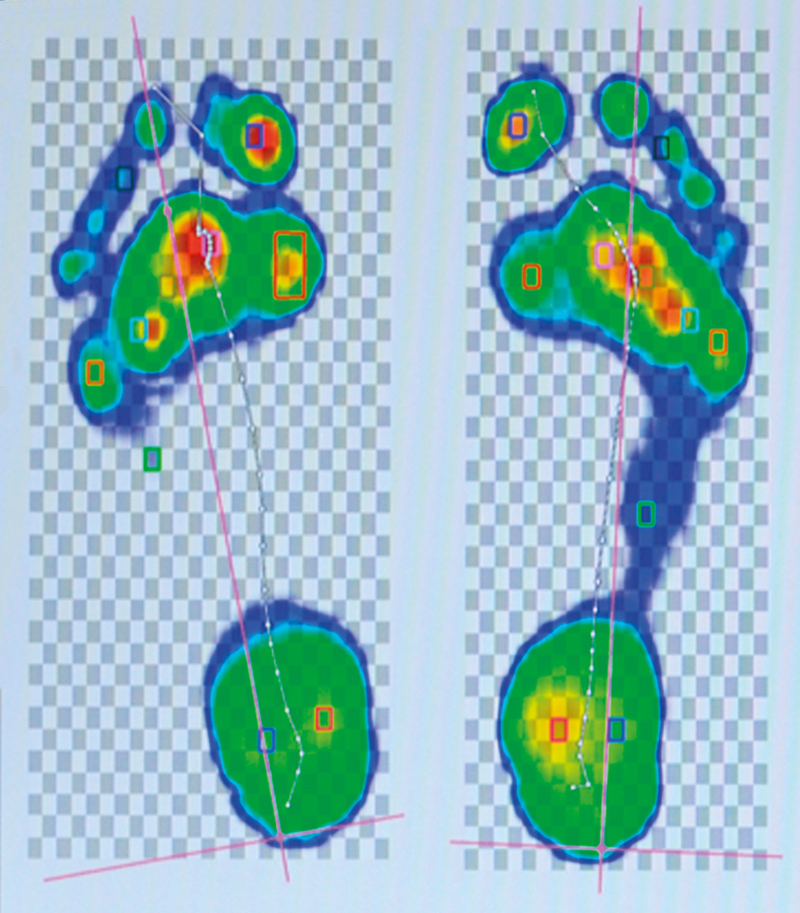 Digitale voetscan voor analyse